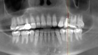 Sofortimplantation in beeinträchtigtem Knochen