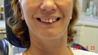 Implantatprothetik im parodontal kompromittierten Gebiss
