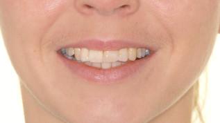 Körperliche Zahnbewegungen und transversale Korrekturen - Teil 2