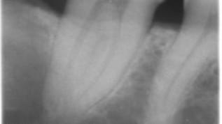 cranium-Patientenfall: Zufallsbefund keratozystischer odontogener Tumor