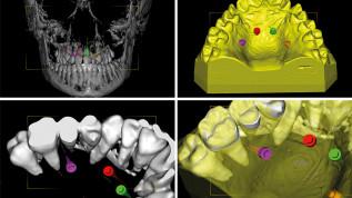 CAD/CAM-Insertionsschienen für rein skelettal verankerte GNE
