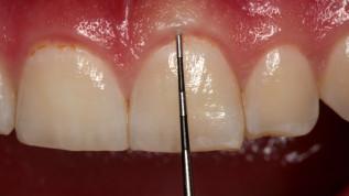 Gingivale Biotypen und deren Einfluss auf parodontale Erkrankungen