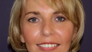 3-D-Implantatplanung bei starker Parodontopathie