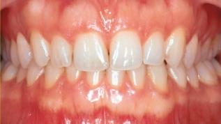 Die parodontale Ästhetik