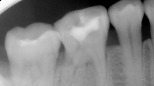 Grenzen der endodontischen Zahnerhaltung