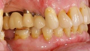 Parodontologie ein Leben lang