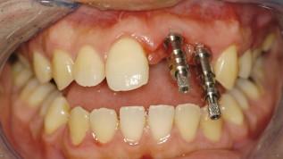 Die Implantatabformung