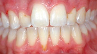 Möglichkeiten und Grenzen der Parodontalchirurgie
