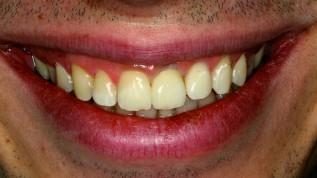Chancen und Risiken dentaler CAD/CAM- Systeme