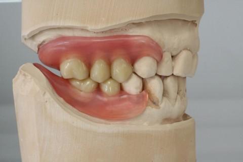 Oberkiefer erfahrungen klammerprothese Zahnersatz: Vorher