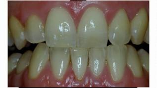 Ästhetische Richtlinien für natürlichen Zahnersatz