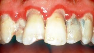 Parodontale Risikobestimmung und Recall