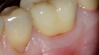 Moderne Endodontie - Ein Überblick