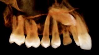 Röntgen in der KFO - analog, digital und 3D (1)