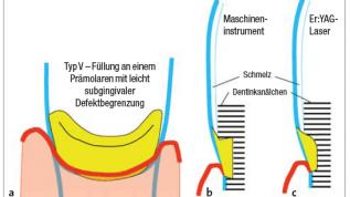 Füllungen im Zahnhalsbereich mit dem Laser