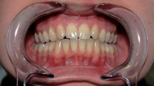 Parodontitis aus endokrinologischer Sicht