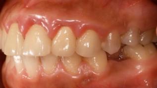 Win-win-Situation für Patient und Zahnarzt
