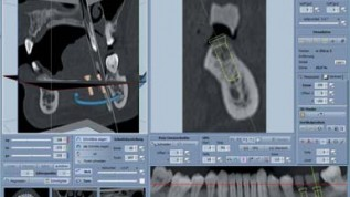 Präzise 3-D-Diagnostik und Implantatplanung