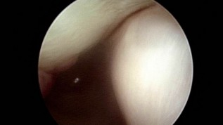 Kiefergelenkchirurgie