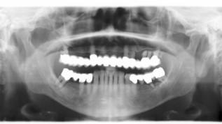 Zurück zu festsitzendem Zahnersatz