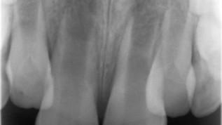 Regenerative Endodontie
