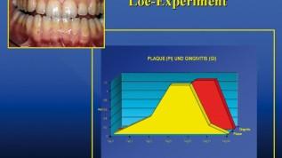 Implantat versus Parodontaltherapie