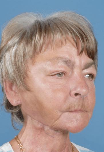 Mundbodenkrebs