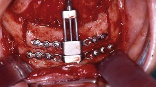 Distraktion in der MKG-Chirurgie