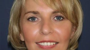 Sofortimplantation bei schwerer Parodontitis