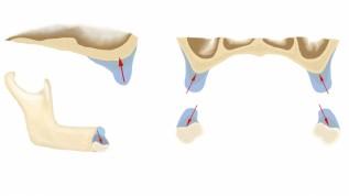 Implantieren im atrophierten Kiefer