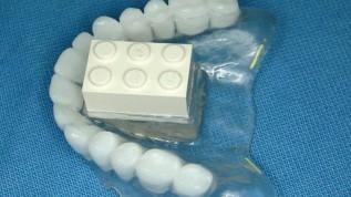 Sinuslift im Flapless-SALSA-Verfahren