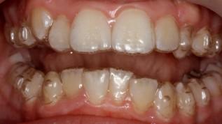 Zahnstellungskorrekturen mit Invisalign