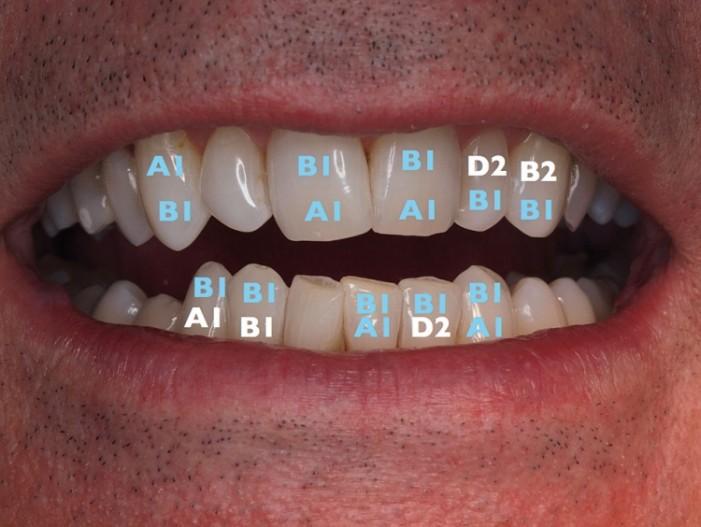 Bleaching - neue Wege einer minimalinvasiven Behandlung