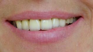 Individueller Behandlungsansatz bei Parodontitis