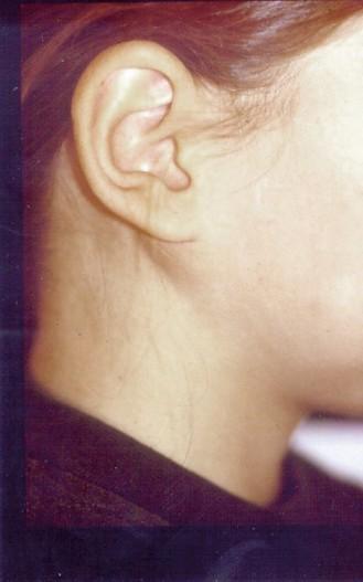 Erkrankungen der Speicheldrüsen – die Tumoren - ZWP online - das ...