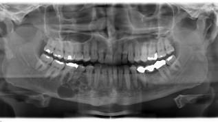 Implantologie bei Rekonstruktion des Unterkiefers