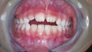 Lückenhalter und Kinderprothesen bei Zahnverlust