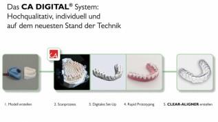 Das neue CA DIGITAL® System