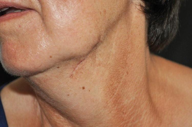 Erkrankungen der Speicheldrüsen – Teil IV: Hints & Tricks - ZWP ...