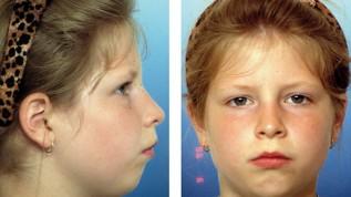 Diagnose und Therapie sagittaler Diskrepanzen