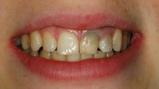 Therapie irreversibel verfärbter Zahnstümpfe