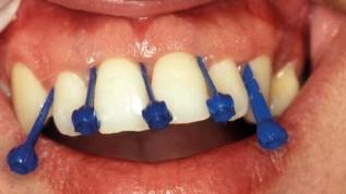 Parodontale Diagnostik und Therapie
