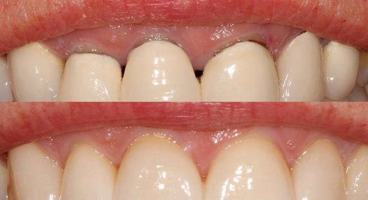 Verfärbt zahn grau WWurzelBehandlung? (Gesundheit