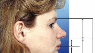 Behandlung von Klasse II-Dysgnathien