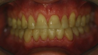 Rehabilitation einer stark erodierten Dentition