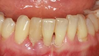 Parodontitis- und Periimplantitistherapie