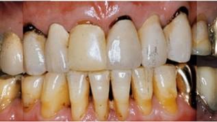 Parodontalprothetische Behandlungsstrategie