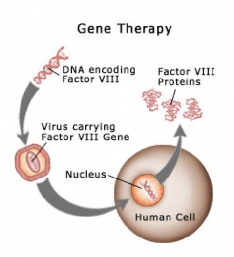 importance of gene therapy which is the therapeutic delivery of nucleic acid polymers into a patient The promise of gene therapy is the ability to transfer efficiently new genetic material into patient cells, either to replace defective genes or introduce therapeutic genes, in order to promote new bone tissue formation to treat the disease.