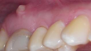 Lasereinsatz in endodontischen Szenarios