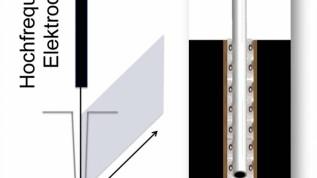 Das kombinierte Laser-Hochfrequenzgerät im Einsatz